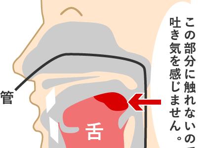 初めての人間ドック&胃カメラで乙女心を体で理解した話 in 新潟『みどり病院』
