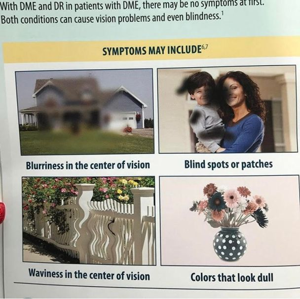 Collage showing blurriness in the center of vision, blind spots or patches, waviness in the center of vision, and colors that look dull.