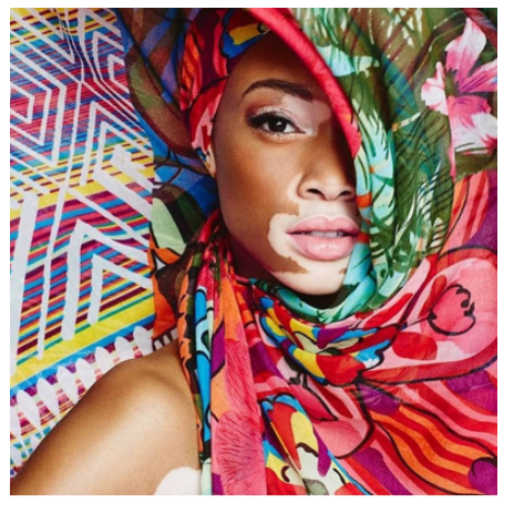 A closeup headshot of model, Winnie Harlow. Her brightly colored silk scarf headdress sweeps up to conceal half of her face. She has a medium dark skin tone and gazes out at camera with a serene expression. An hourglass-shaped patch of vitiligo extends from her chin to the bottom of her nose, outlining her mouth. A single vitiligo patch in the shape of a cloud is visible above her eye.