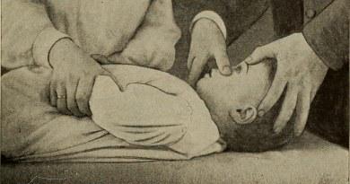 old pediatric exam