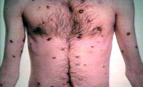 Do You Remember Kaposi's Sarcoma?   David Boles, Blogs