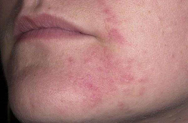 Атопический дерматит на лице и руках: Симптомы и лечение