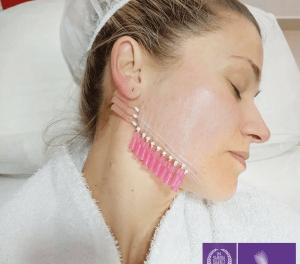 Hilos tensores el tratamiento para rejuvenecimiento facial  sin cirugía que ofrece Presenza