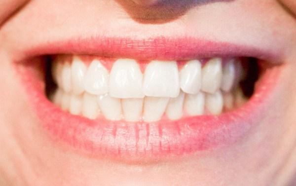 Dentistas en Alcorcón