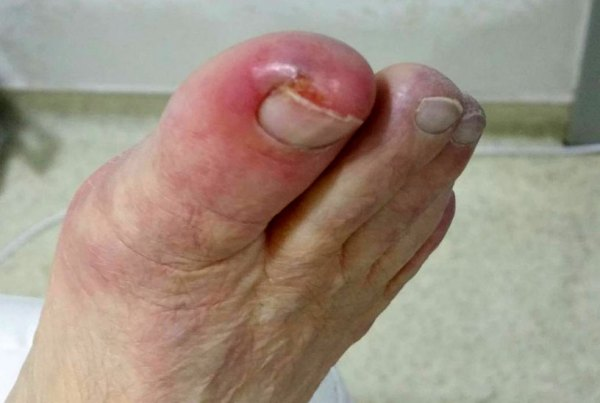 Гангрена ноги фото симптомы и причины болезни