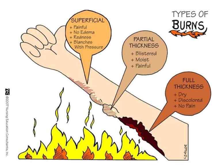 Tipe-tipe luka bakar