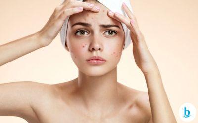 Limpeza de pele caseira – Saiba já quais são os riscos!