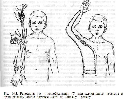 a bokaízület epifiziolízise)