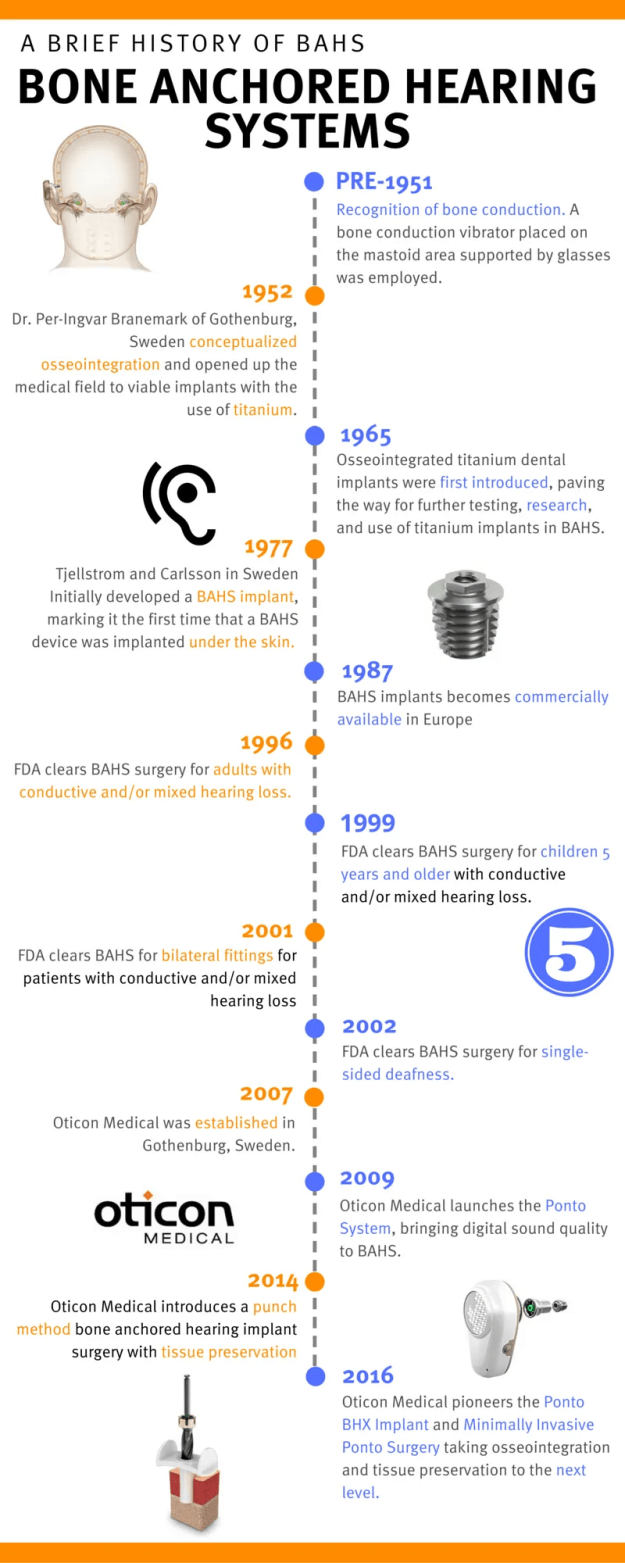 Bone Anchored Hearing Systems History Infographic