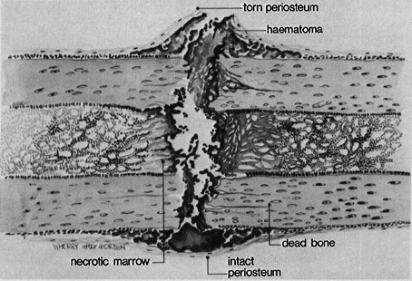 fracture healing process image