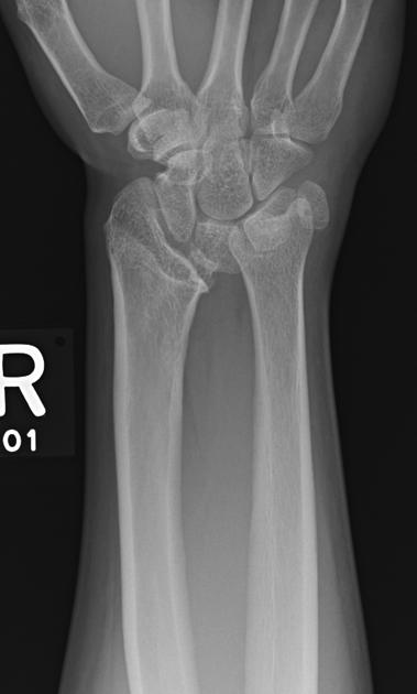 Xray of Madelung Deformity