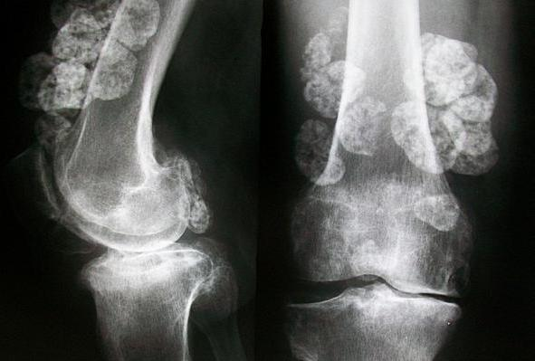 Synovial Chondromatosis with Large Loose Bodies