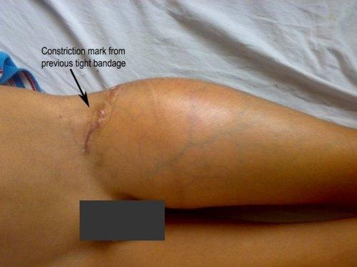 osteosarcoma - the malignant bone tumor, clinical photograph