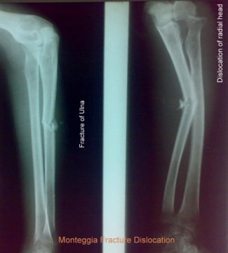 monteggia-fracture-dislocation
