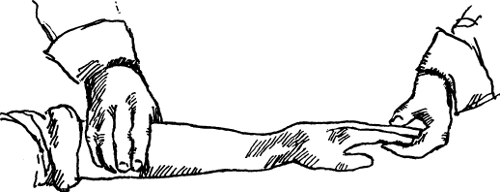 Illustration showing Colles fracture