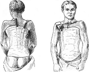 scoliosis-jackets