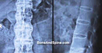 Ankylosing Spondylitis Presentation and Treatment