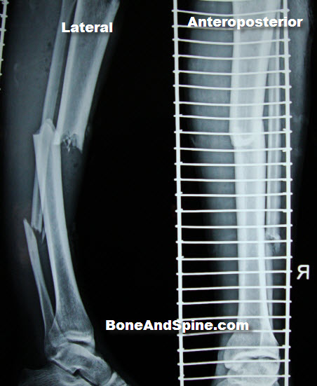 fracture-tibia and fibula