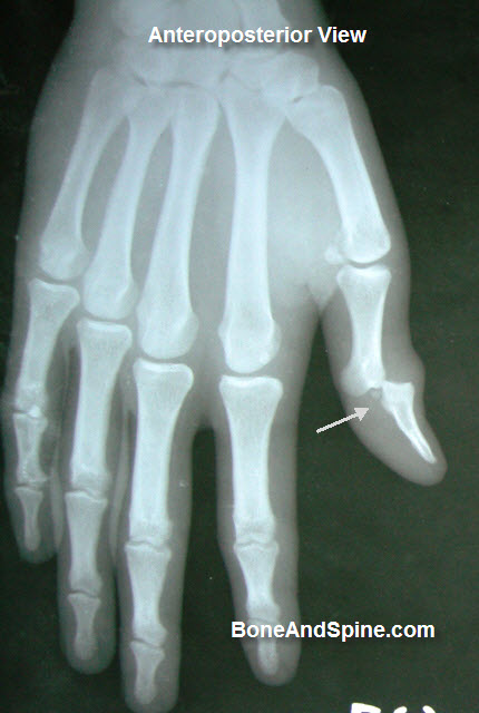 interphalangeal-joint-dislocation-thumb