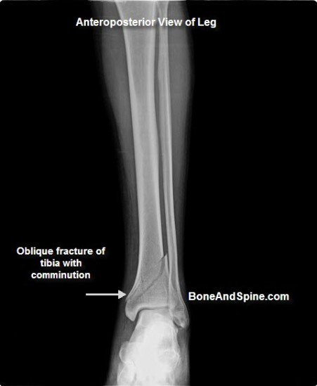 Lower Tibia Impaction Fractures