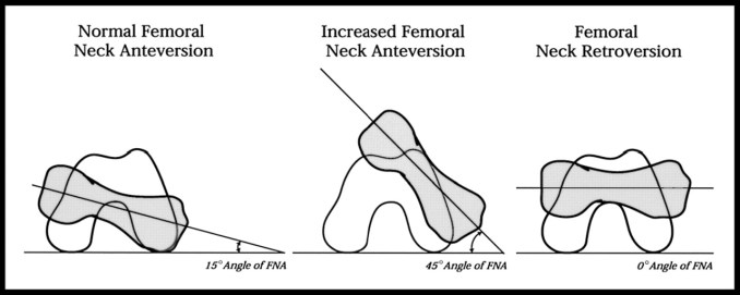 Anterversion and Retroversion of Femur