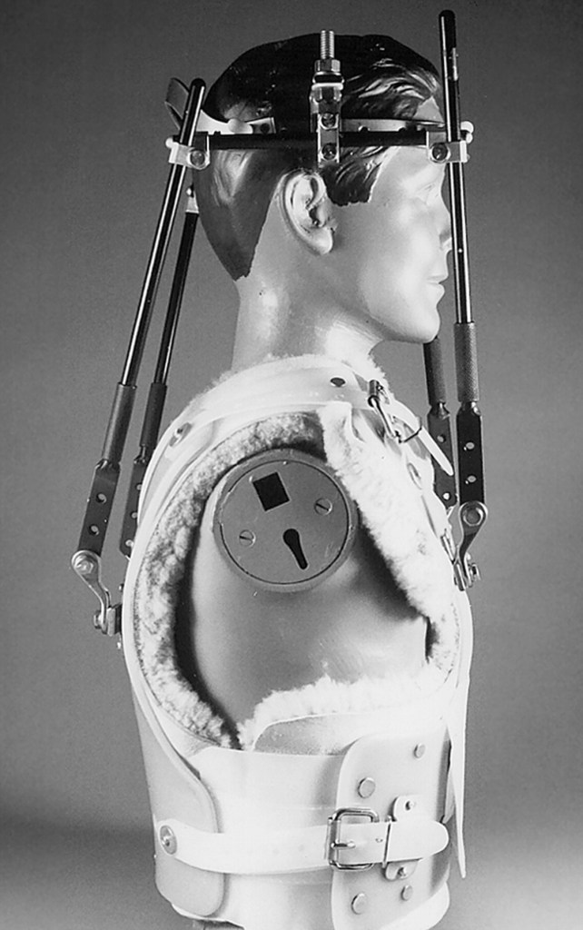 halo vest for cervical immobilization