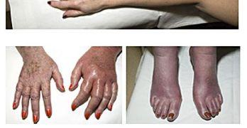 Erythromelalgia Causes and Treatment