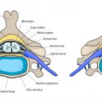 Segmental Instability of Lumbar Spine