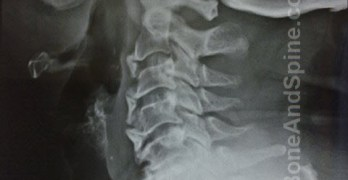 Cervical Spondylosis Causes and Treatment