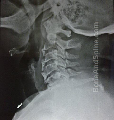 Cervical Spondylosis with severe anterior osteophytes cervical spine