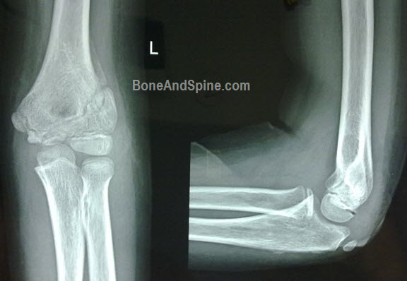 Operated and united fracture of lateral condyle of humerus