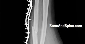 Forearm Fractures in Adults