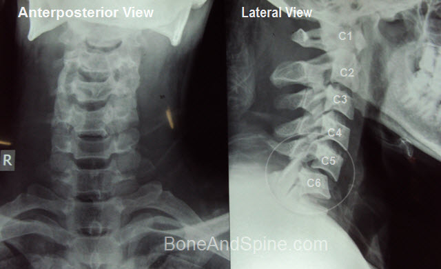 Cervical Injury X-rays | Bone and Spine