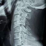 C4-5 Cervical injury xray