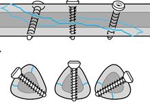 Interfragmentary screw fixation of fracture