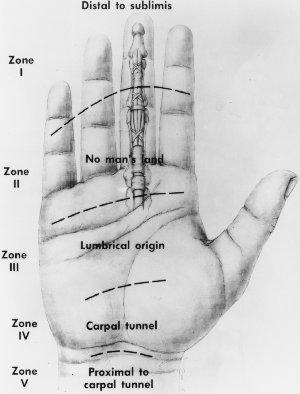 Tendon Zones In Flexor Aspect of Hand