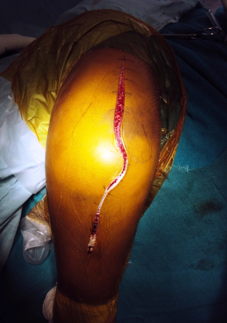 Posterior Incision Elbow
