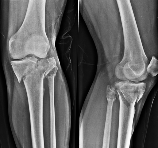 Functional outcome of Schatzker type V and VI tibial plateau fractures treated with dual plates