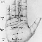 flexor tendon zones hand