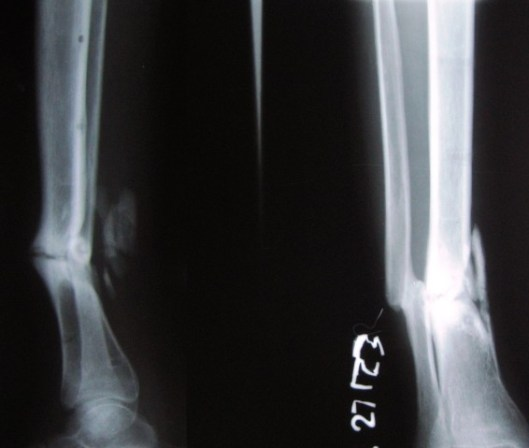 united fracture fibula and ununited tibia fracture