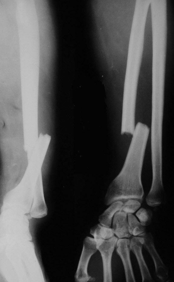 galeazzi-fracture dislocation