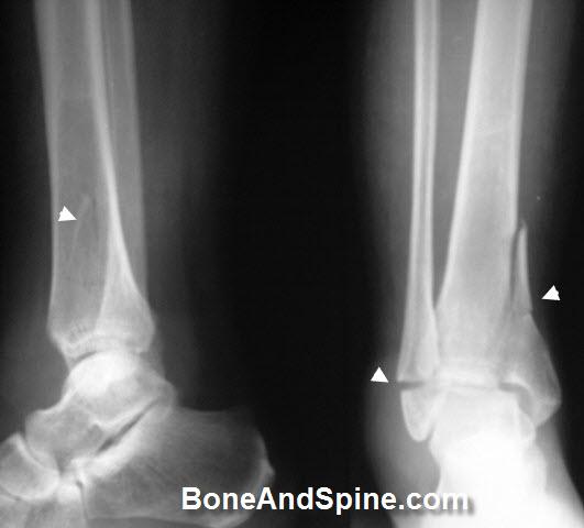 Bimalleolar Fracutre In Ankle