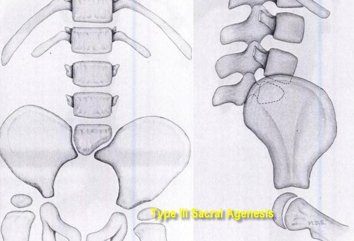 Sacral Agenesis Organs
