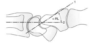 Radiolunate Angle