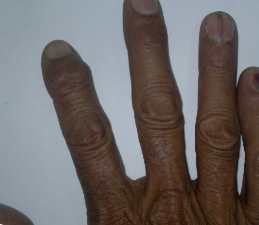 Mallet Finger Deformity In Index Finger