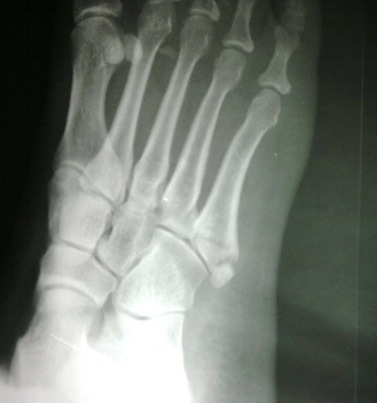 Fracture of Base of Fifth Metatarsal