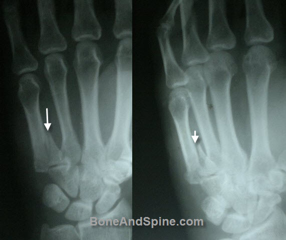 Fracture of Base of Fifth Metacarpal