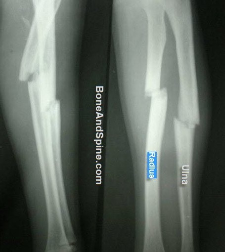 fracture of Radius and Ulna