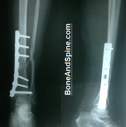 Fracture Tibia Fixed With Dynamic Compression Plate