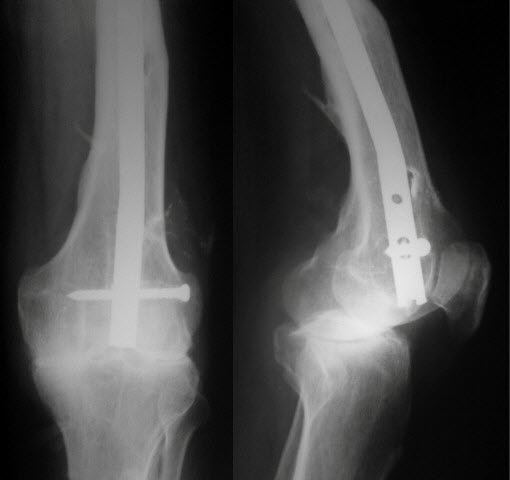 Intramedullary Supracondylar Nail In Fracture Femur